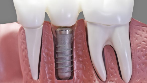 Replace Your Missing Tooth with a Dental Implant