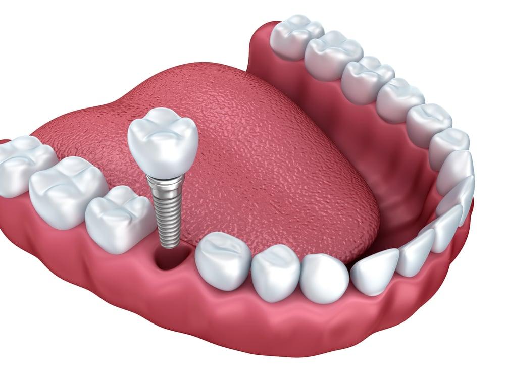 Should You Get Dental Implants OR Bridges?