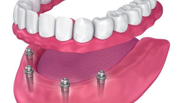 Loose Dentures? Consider an Overdenture!